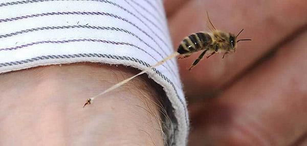 первая помощь при укусе пчелы или осы